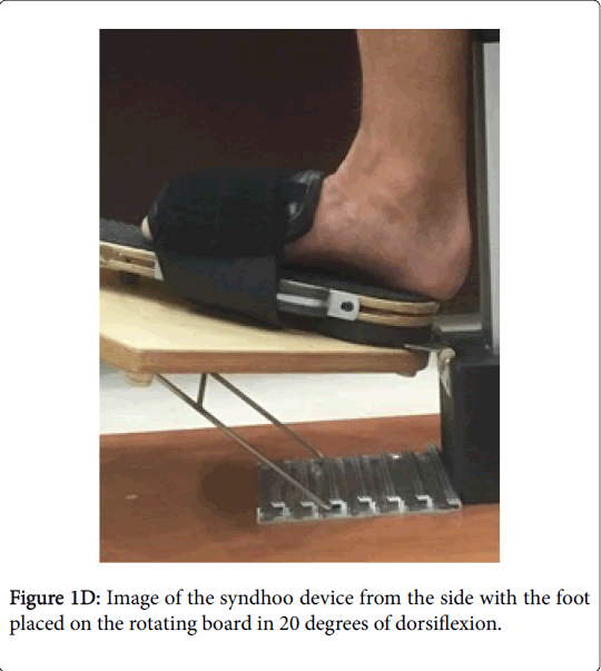 clinical-research-foot-ankle-syndhoo-device