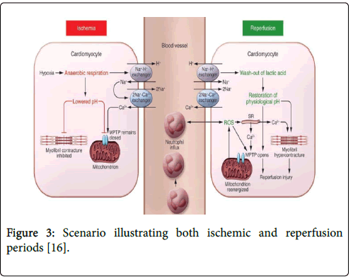 clinical-trials-therapy-ischemic-reperfusion