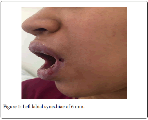 clinical-trials-therapy-labial-synechiae
