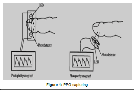 computer-science-systems-biology-PPG-capturing