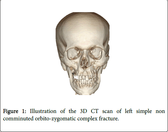 cosmetology-orofacial-surgery-complex-fracture