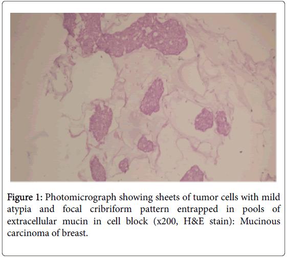 cytology-histology-photomicrograph-cribriform