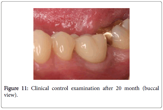 dentistry-Clinical-control-examination