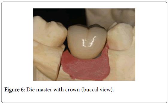 dentistry-Die-master-crown