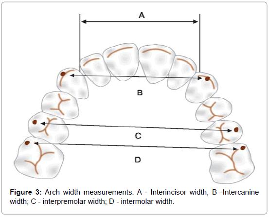 dentistry-Interincisor-width