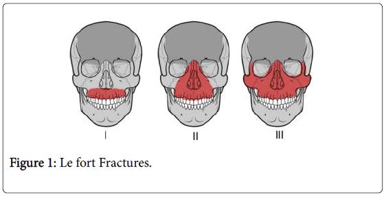 dentistry-Le-fort-Fractures