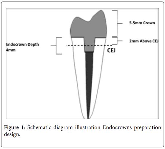 dentistry-Schematic-diagram