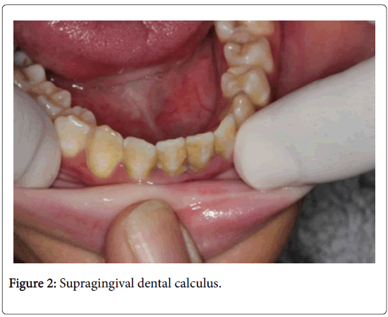 dentistry-Supragingival-dental-calculus