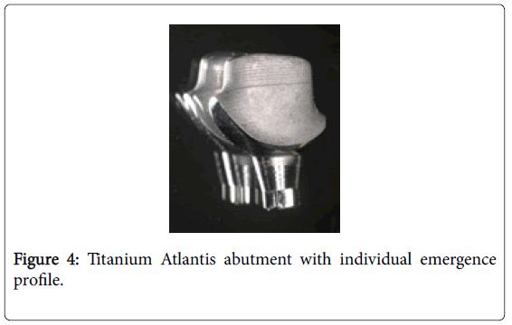 dentistry-Titanium-Atlantis