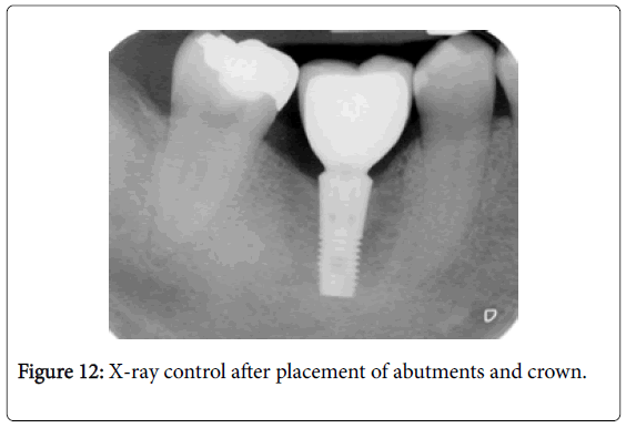 dentistry-X-ray-control