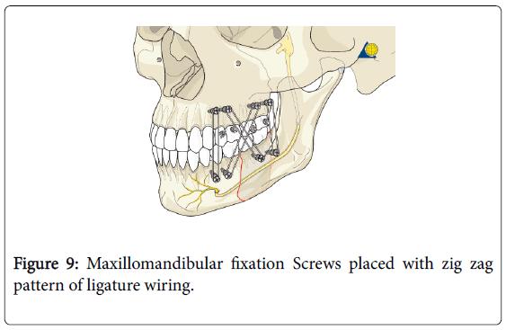 dentistry-pattern-ligature-wiring