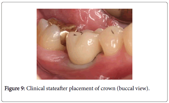 dentistry-placement-crown