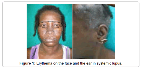 dermatology-case-reports-erythema