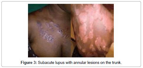 dermatology-case-reports-subacute