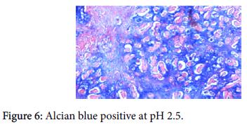 diagnostic-pathology-Alcian-blue