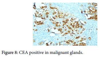 diagnostic-pathology-CEA-positive