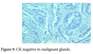 diagnostic-pathology-CK-negative