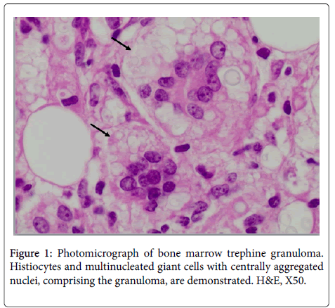 diagnostic-pathology-Photomicrograph-bone