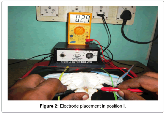 earth-science-climatic-change-Electrode-placement