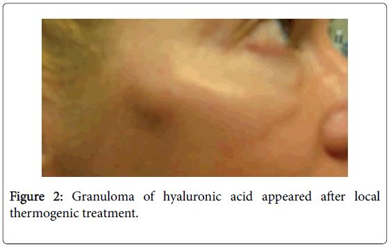 emergency-medicine-granuloma-hyaluronic-acid