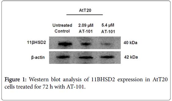 endocrinology-Western-blot-analysis