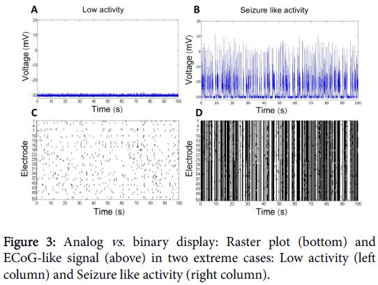 epilepsy-Analog-binary-display