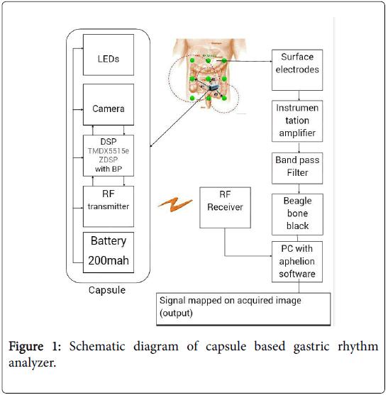 Kapselbasierter Magenrhythmus-Analysator: Ein Werkzeug zur Diagnose ...