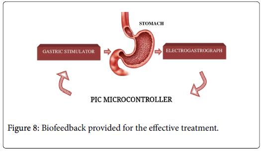 gastrointestinal-digestive-Biofeedback