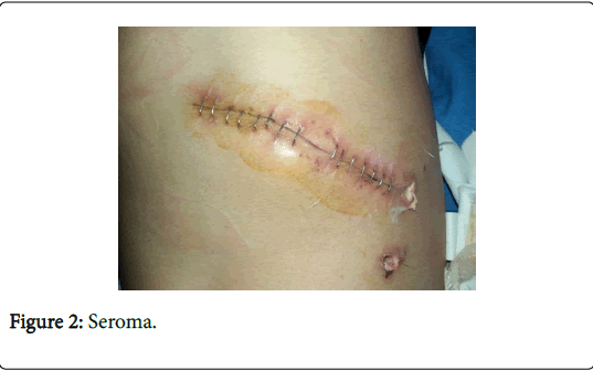 Role of Negative Suction Subcutaneous Drains in Contaminated