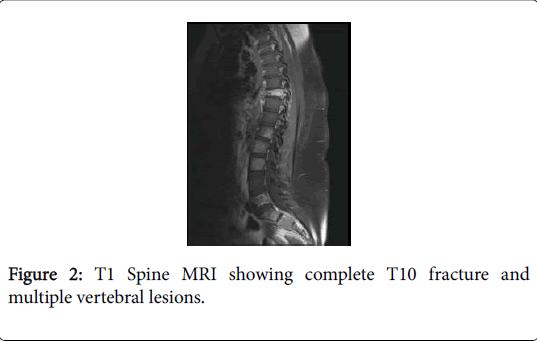 general-medicine-multiple-vertebral