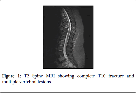 general-medicine-vertebral-lesions