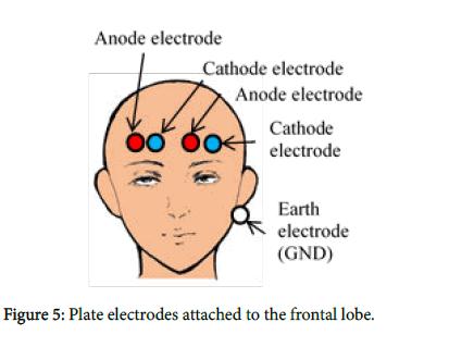 geophysics-remote-sensing-frontal-lobe