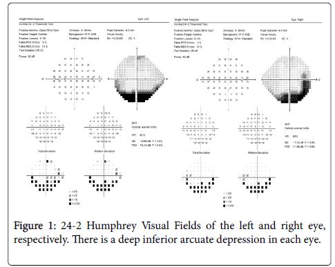 glaucoma-Humphrey-Visual