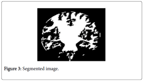 global-journal-technology-Segmented-image