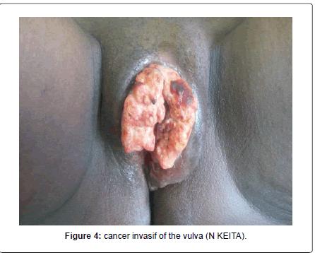 gynecology-obstetrics-cancer-invasif