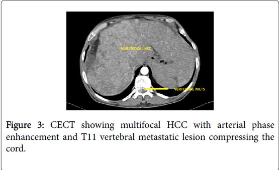 hepatology-metastatic-lesion