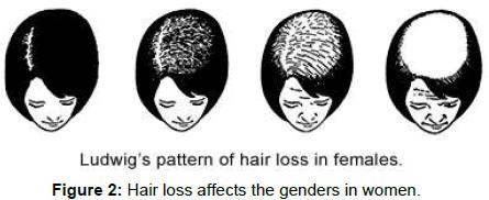homeopathy-ayurvedic-Hair-loss-women