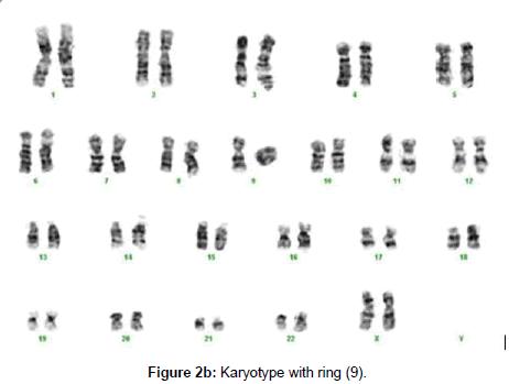 human-genetics-embryology-Karyotype