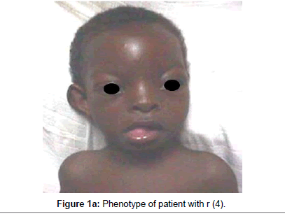 human-genetics-embryology-Phenotype-patient