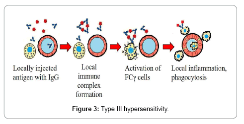 immunology-current-research-hypersensitivity-type-iii