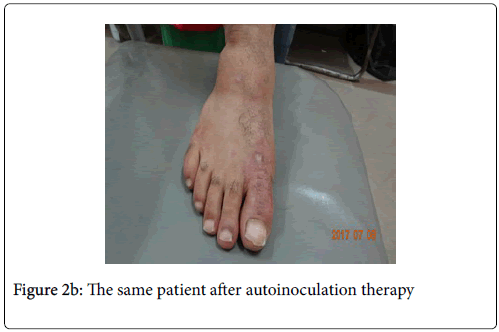 infectious-diseases-autoinoculation-therapy