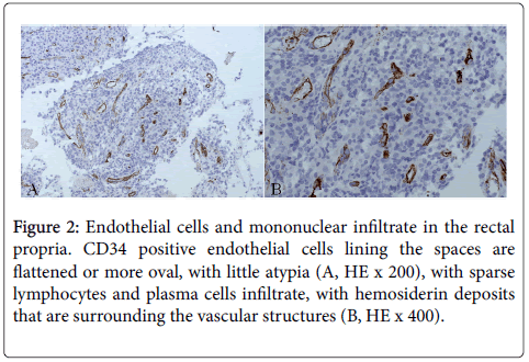 infectious-diseases-therapy-Endothelial-cells