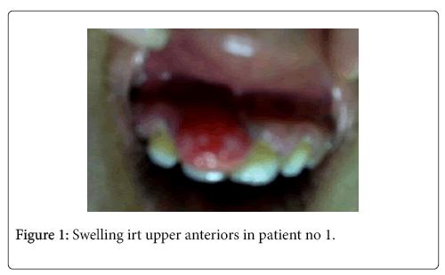 interdisciplinary-medicine-dental-science-anteriors