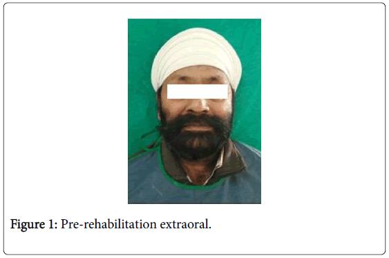 interdisciplinary-medicine-dental-science-pre-rehabilitation