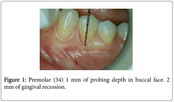 interdisciplinary-medicine-dental-science-premolar-buccal-face