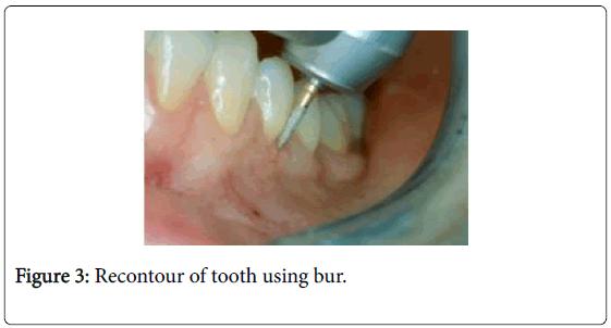 interdisciplinary-medicine-dental-science-recontour-tooth-bur
