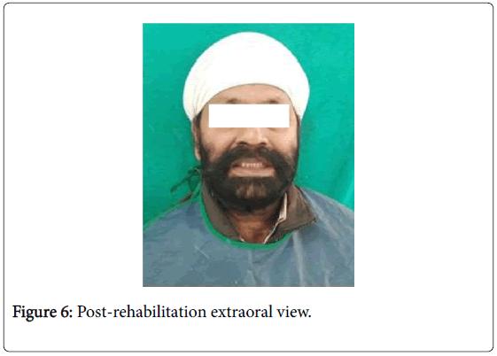 interdisciplinary-medicine-dental-science-rehabilitation-extraoral
