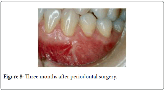 interdisciplinary-medicine-dental-science-three-months-surgery
