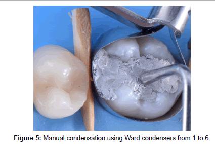 journal-odontology-Manual-condensation
