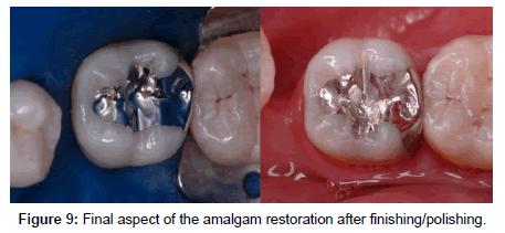 journal-odontology-amalgam-restoration